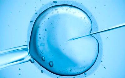 FIV Murcia, Ginecólogas en Murcia, Ginecólogos en Murcia, fecundación in vitro Murcia