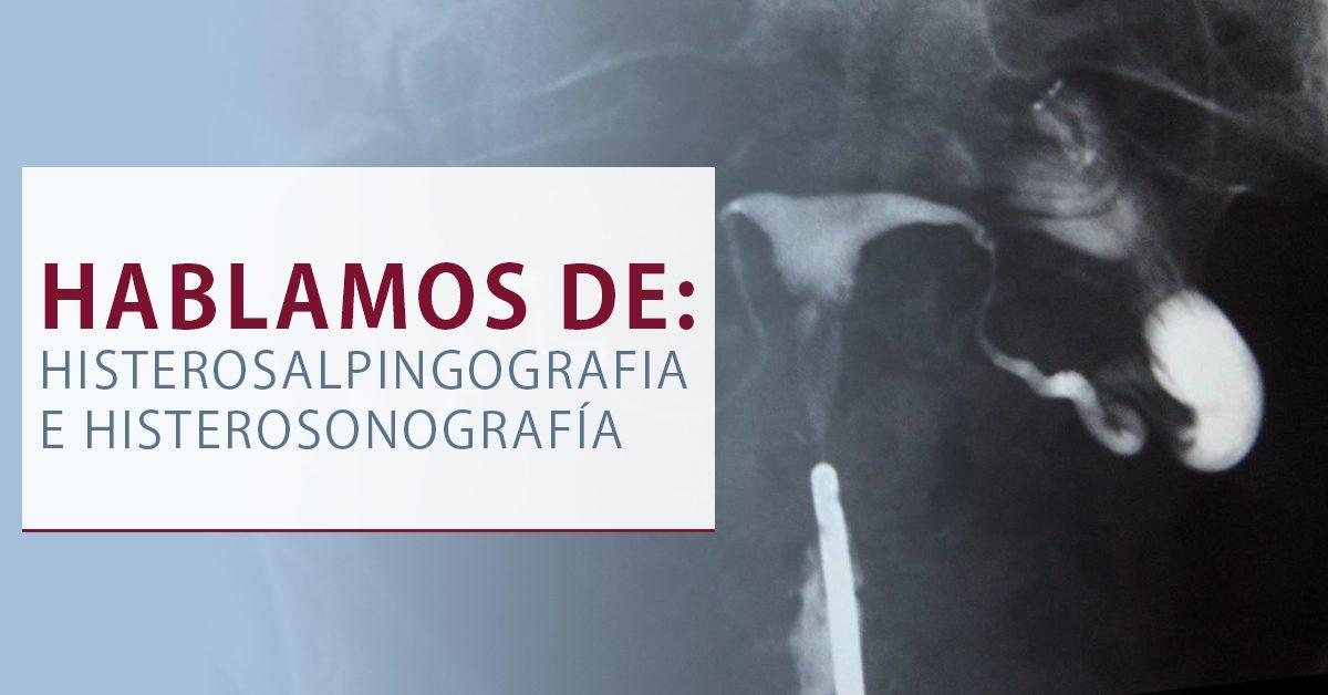 histerosalpingografia - Inseminación artificial Murcia
